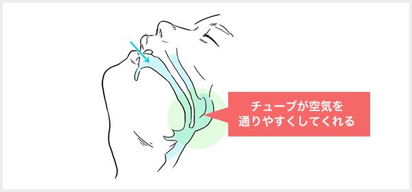 ナステントとは鼻からシリコン製のやわらかいチューブを入れる