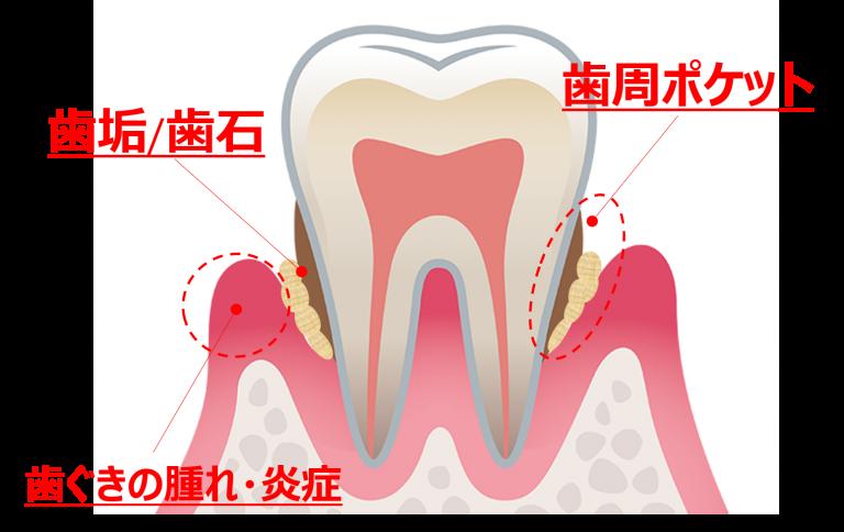 歯みがきで歯周病を防ごう